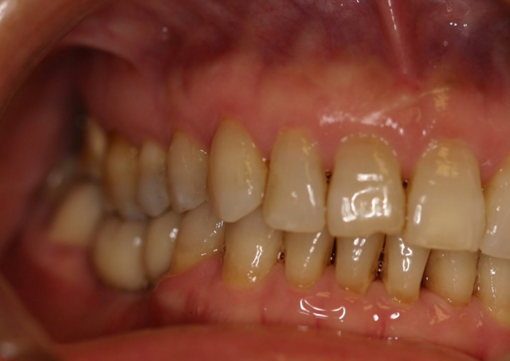 Dental Implant - Case 6 - After Picture