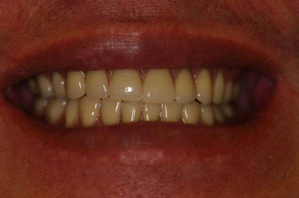 Denture - Case 1 - After Picture