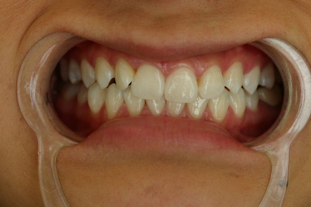 Zoom Whitening - Case 2 - After Picture
