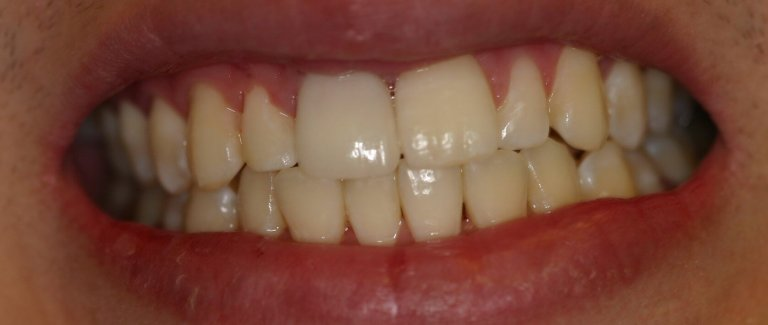 Dental Implant - Case 1 - After Picture
