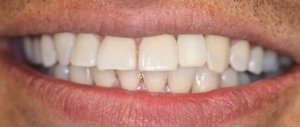 Dental Implant - Case 2 - After Picture