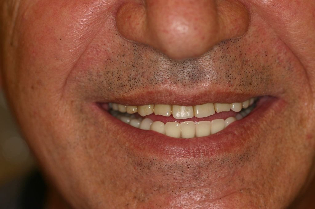 Denture - Case 2 - After Picture