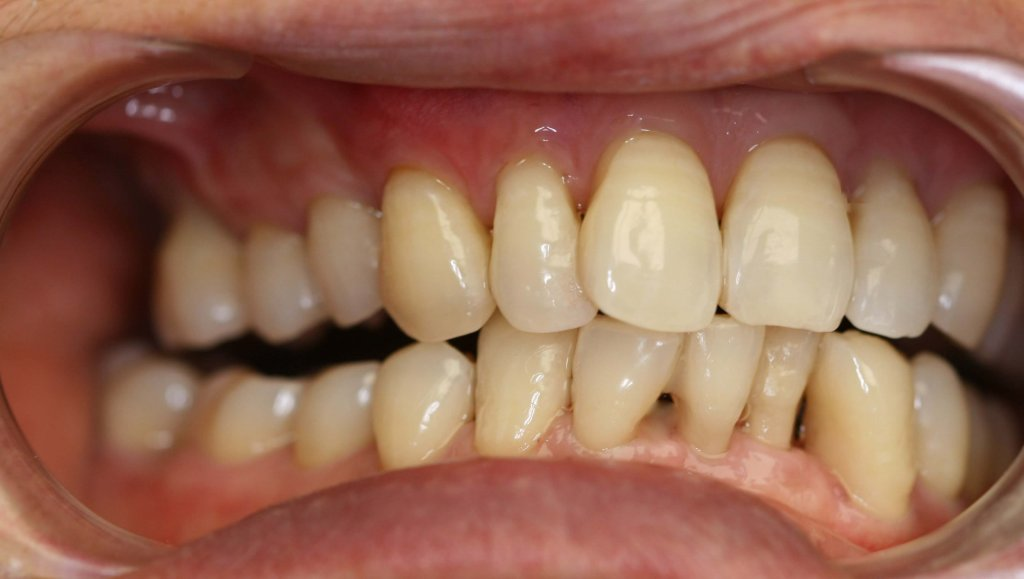 Gum Grafting - Case 1 - After Picture