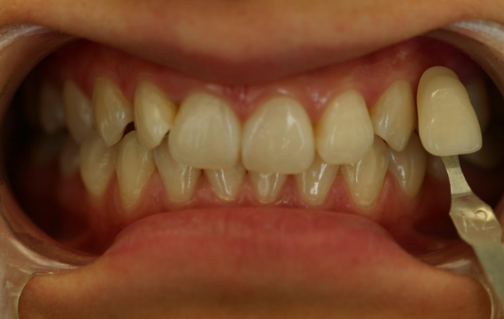 Zoom Whitening - Case 2 - Before Picture