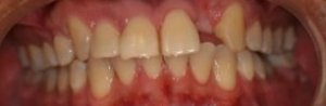 Dental Implant - Case 2 - Before Picture