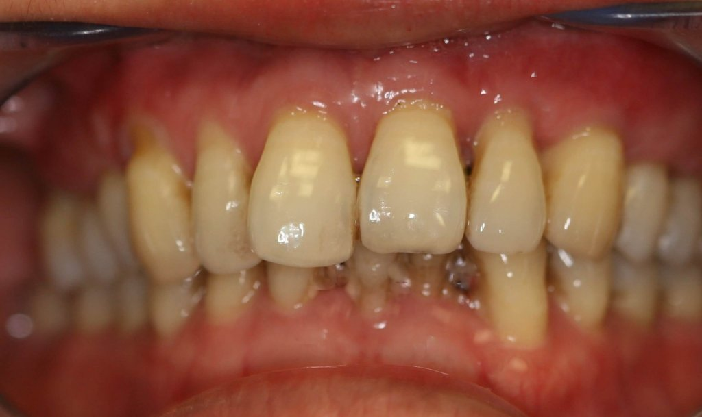 Gum Grafting - Case 1 - Before Picture