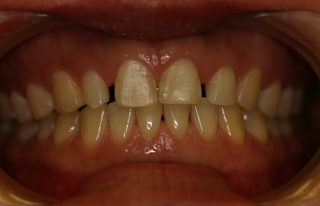 Zoom Whitening - Case 1 - Before Picture