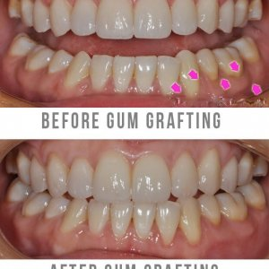 Gum Grafting Surgery Before and After